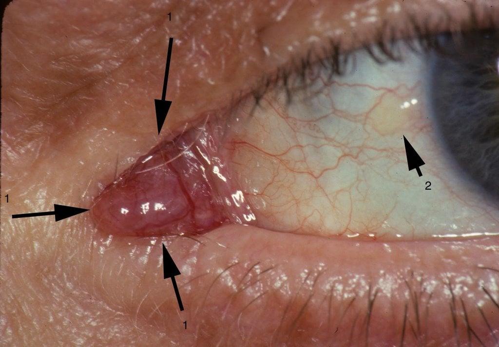 Bump On Corner of Eye