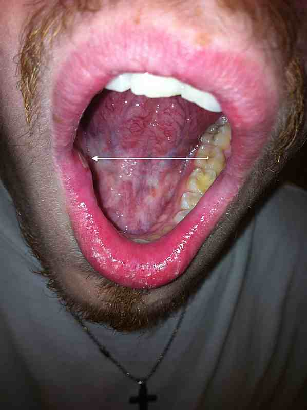 canker sore on tonsilCanker Sore On Tonsil Causes