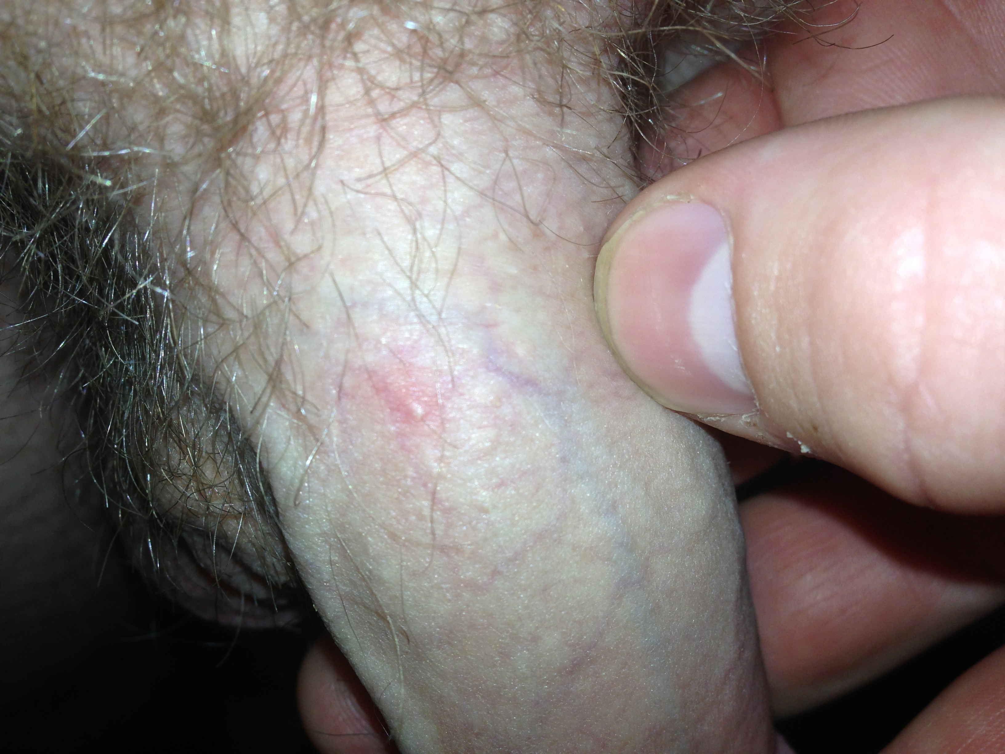 Pimple on Penis - Penile Pimple Causes - STD Test Express