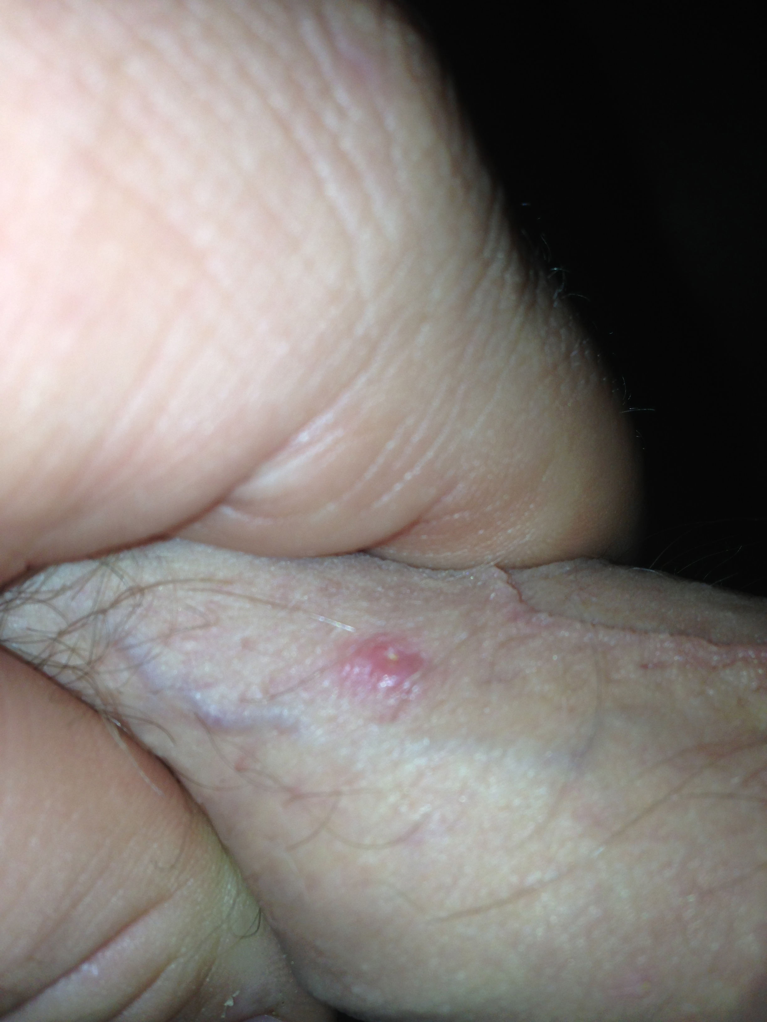 Ingrown Hair Infection Vaginal Ingrown hair infection vaginalHerpes Penile Shaft