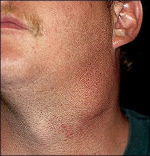 Enlarged lump on side of neck can occur due to enlarged lymph gland    Enlarged Lymph Nodes In Neck