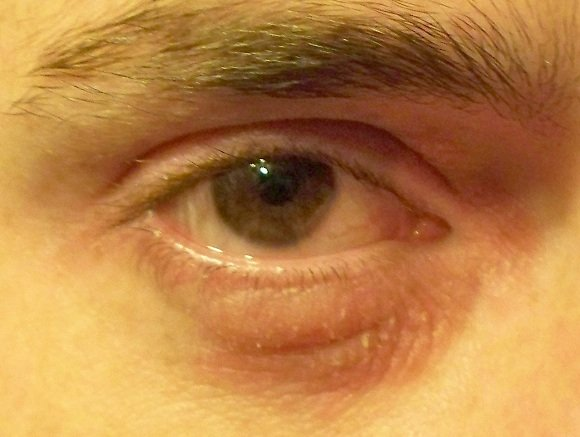 Eye Allergies Picture Image on MedicineNet.com