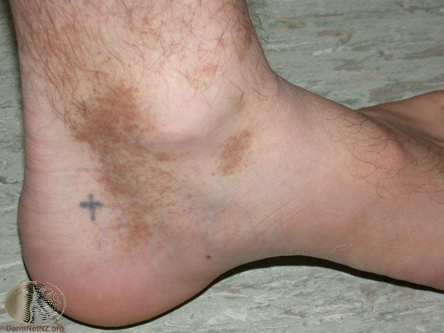 Red Spots On Heel Of Foot - Doctor answers on HealthTap